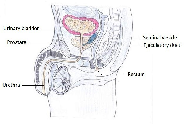 prostate cancer stage 4 treatment in india