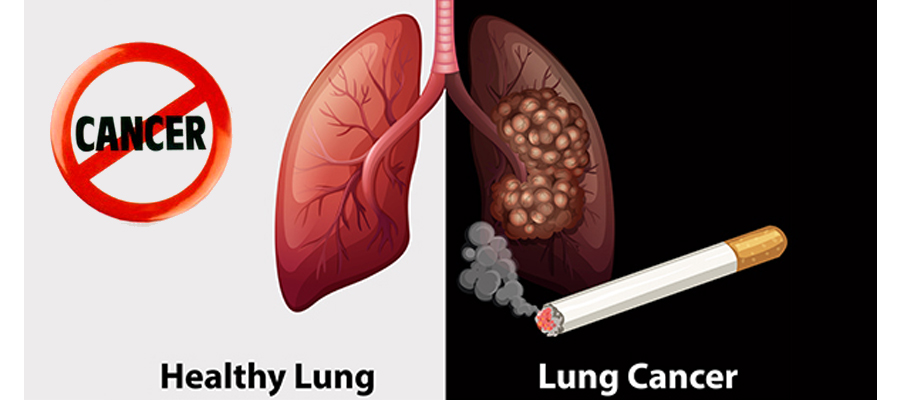 Lung Cancer : Risk Factors, Symptoms | Prevention Lung Cancer